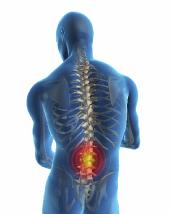 Back Pain Treatment Cardiff