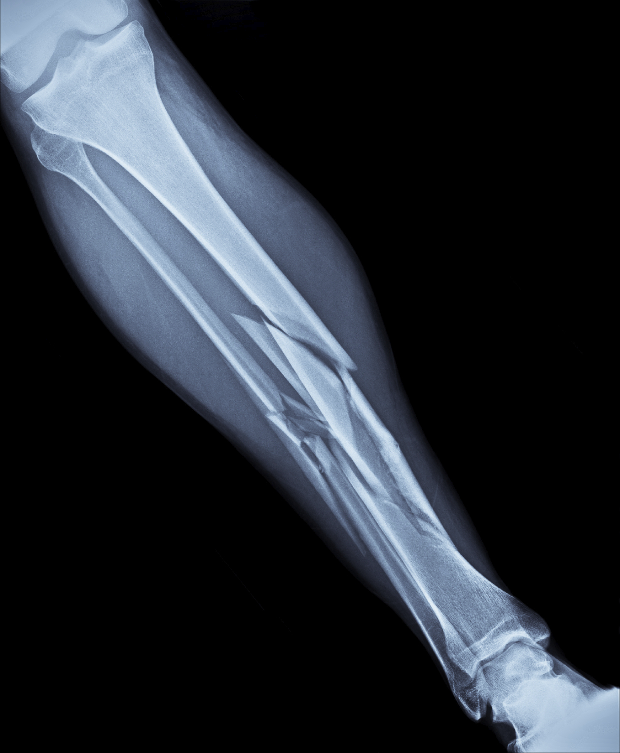What Is A Fractured Bone Cardiff Physio