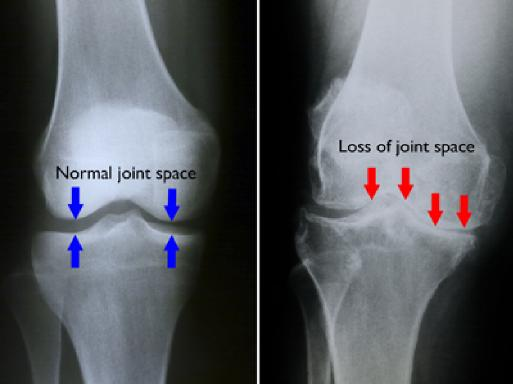Osteoarthritis of the knee and hip
